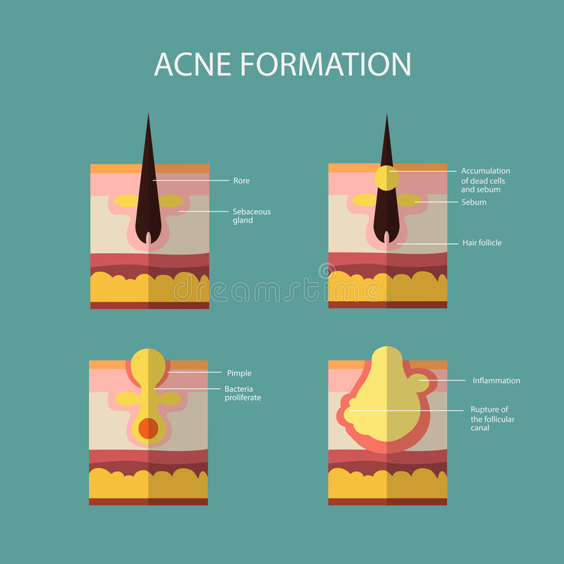 Formation of skin acne or pimple. The sebum in the. Clogged pore promotes the growth of a certain bacteria. Propionibacterium Acnes. This leads to the redness royalty free illustration