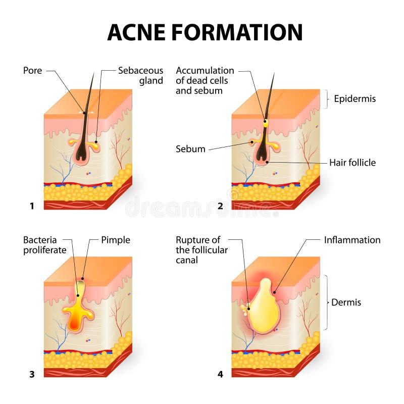 Formazione dell'acne royalty illustrazione gratis