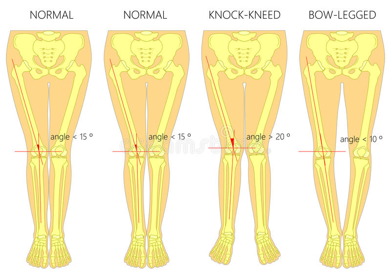 Formes des jambes Jambes normales et incurvées Genoux de coup Jambe cintrée illustration stock