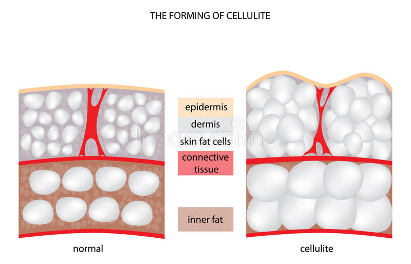 Forming cellulite stock illustration