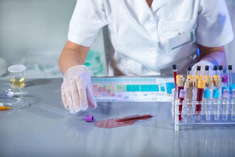 Forskare spillde provröret med infekterat blod royaltyfri foto