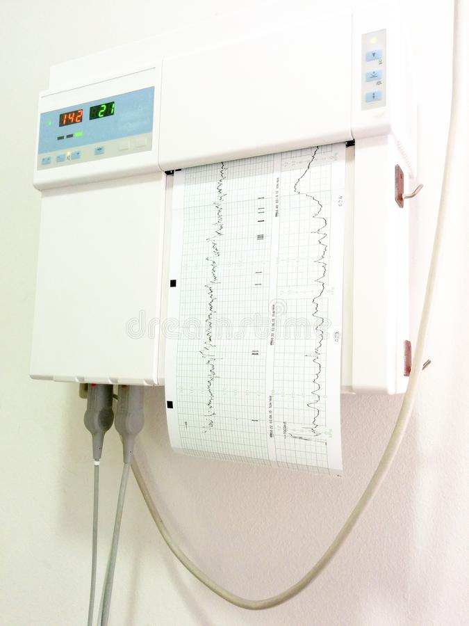 Foster- monitorization Kontroll f?r hj?rtahastighet under havandeskap arkivbilder