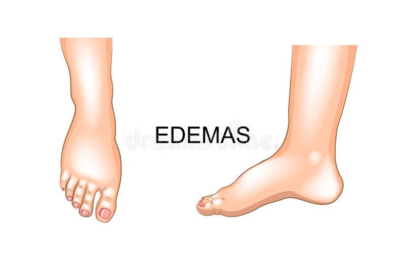 Fotbulnad edema stock illustrationer