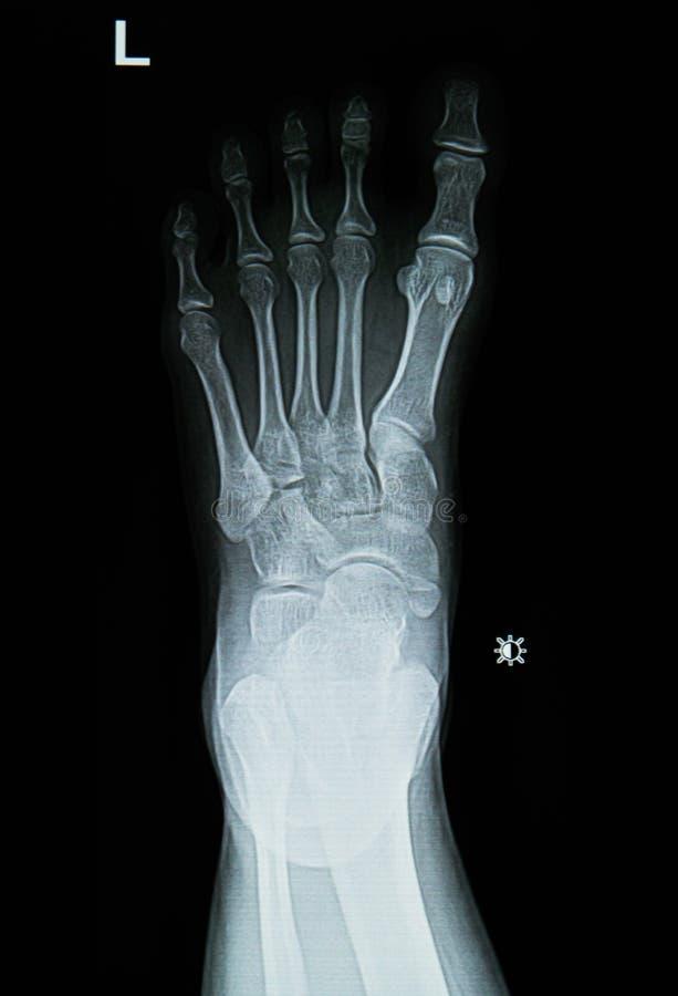 foten x-rays bild royaltyfri bild