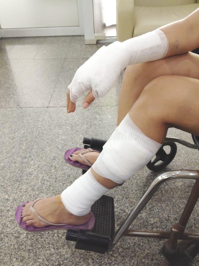 Foto conservada em estoque - a mulher feriu o pé e a mão dolorosos com gauz branco foto de stock