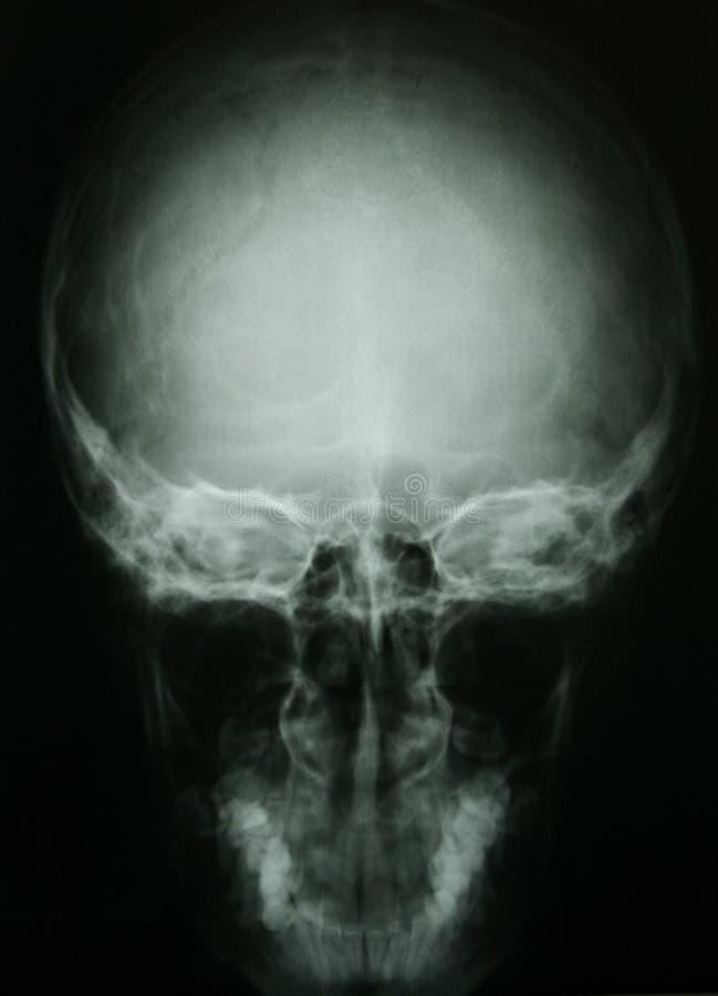 Foto de la radiografía de un cráneo humano fotografía de archivo