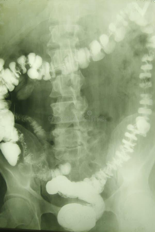 Foto de la radiografía de una vértebra fotografía de archivo libre de regalías