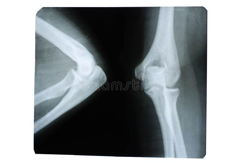 Foto de um raio X humano de uma jun??o na ?rea do cotovelo foto de stock royalty free