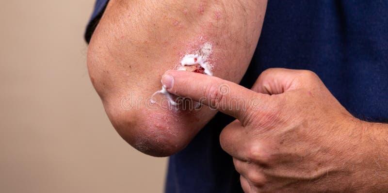 Foto del concepto del tratamiento de enfermedades de la piel usando los ungüentos como forma de dosificación de droga El paciente imagen de archivo libre de regalías