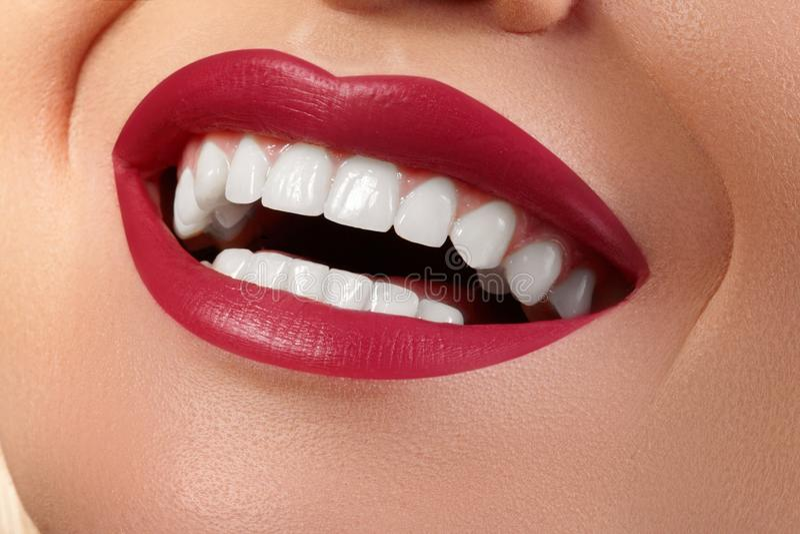 Foto dental Sonrisa femenina feliz macra con los dientes blancos sanos Maquillaje rojo de los labios Tratamiento de la estomatolo imagen de archivo