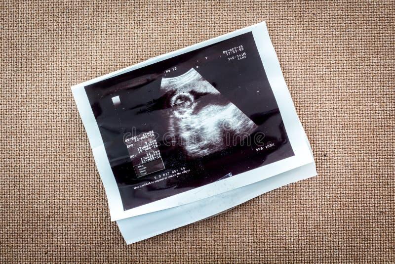Foto eines Ultraschall Sonogram des ungeborenen Babys stockbild