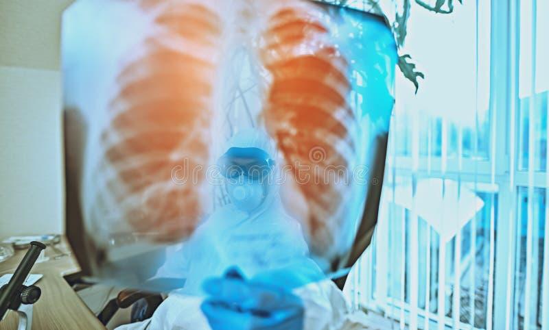 Foto a raggi X sui polmoni fotografia stock libera da diritti