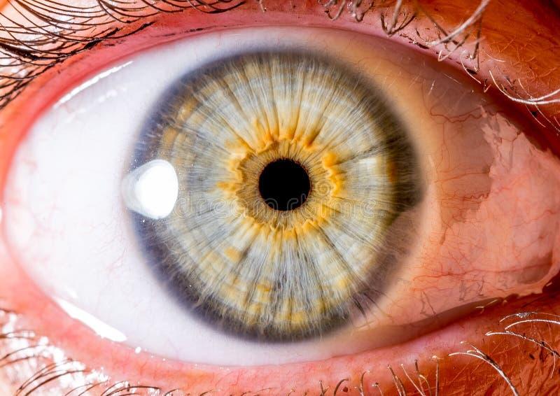 Fotografia dell'iride Macro colpo vicino di un bulbo oculare bianco verde pallido e giallo con il cratere immagine stock
