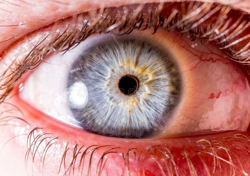 Fotografia dell'iride Macro colpo vicino di un bulbo oculare blu-chiaro e bianco o giallo con il cratere fotografie stock