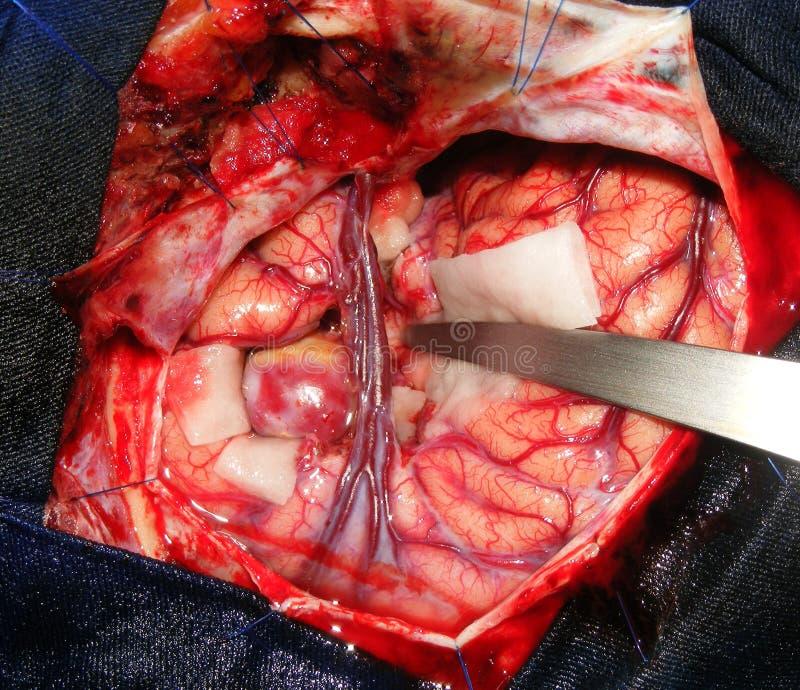 Neurochirurgia per un aneurisma gigante fotografia stock