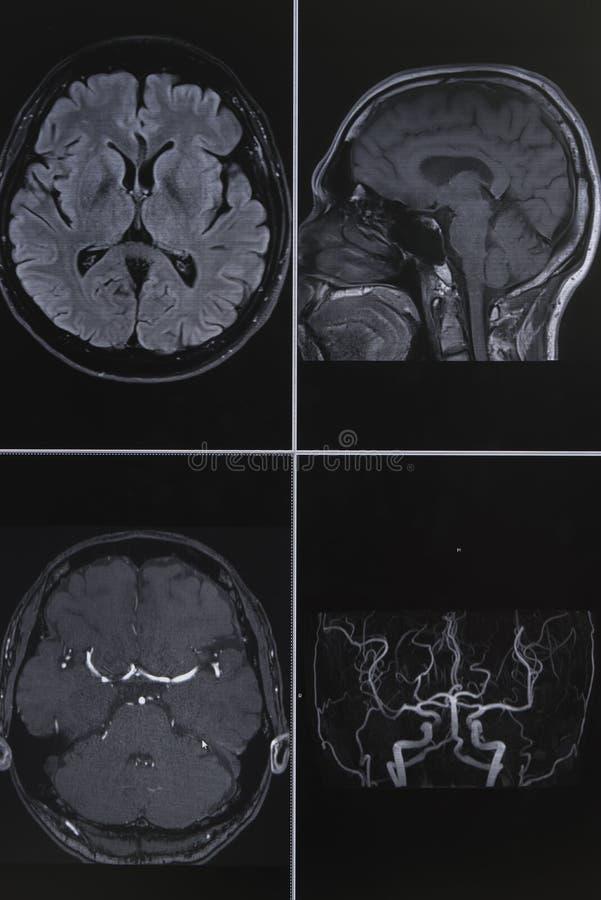 Fotografia ludzkiego mózg obrazowanie rezonansem magnetycznym obraz stock