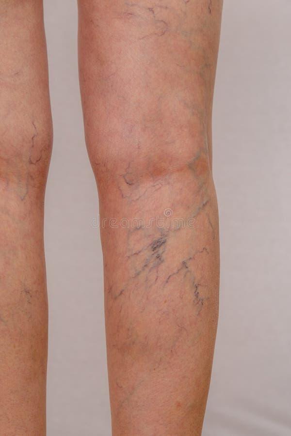 Fotografia nogi stara kobieta w białych majtasach z celulitisami i żylakowatymi żyłami na lekkim odosobnionym tle fotografia royalty free