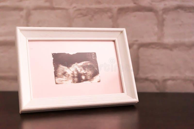 Fotografia ultrad?wi?ku wizerunek w ramie jest na stole mi?kkie ogniska, zdjęcia royalty free