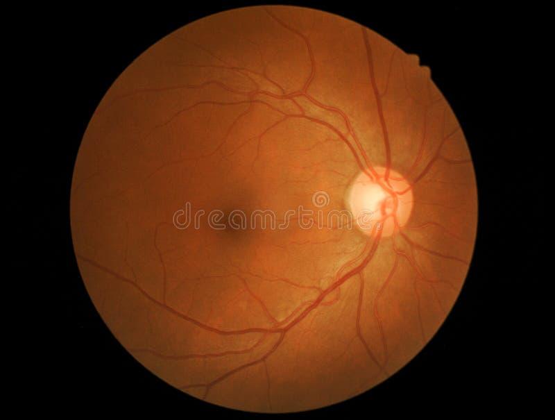 Fotografii medyczna wyszczególnia siatkówka i wzrokowy nerw obrazy stock