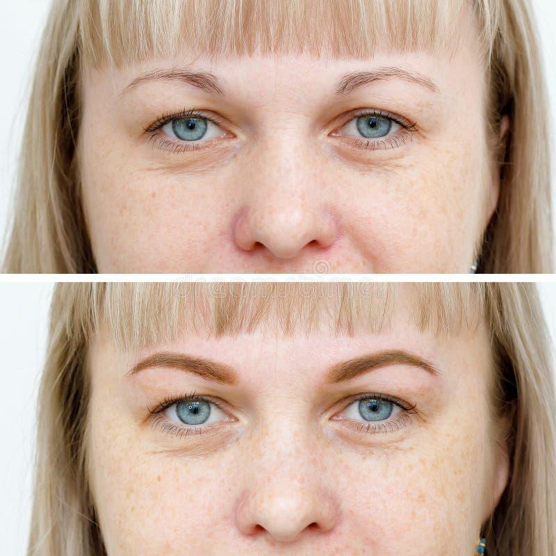 Fotovergleich vor und nach dauerhaftem Make-up, T?towieren von Augenbrauen stockbilder