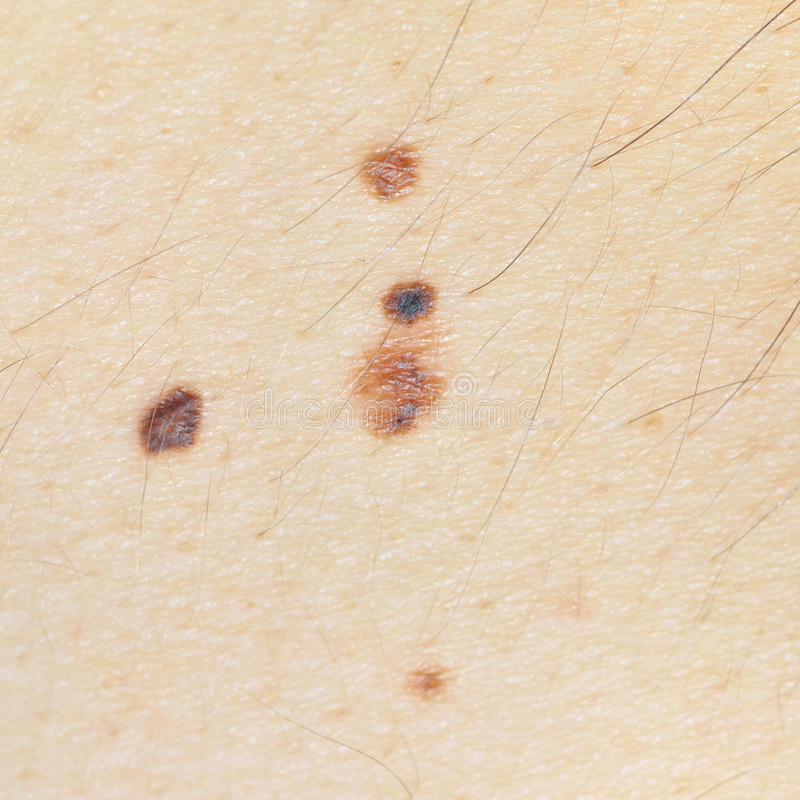 Four nevi on the skin on Caucasian men back. Close-up Four nevi on the skin on Caucasian men back. Suspicious-looking compound nevus (1-3 mm) classified to skin stock image