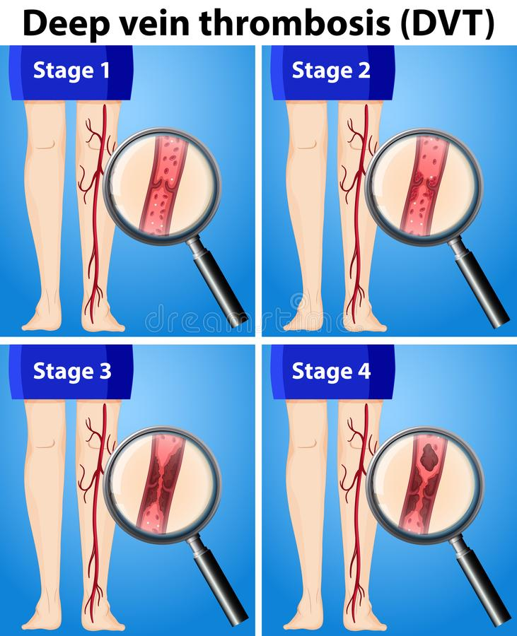 Four Stages of Deep Vein Thrombosis stock illustration