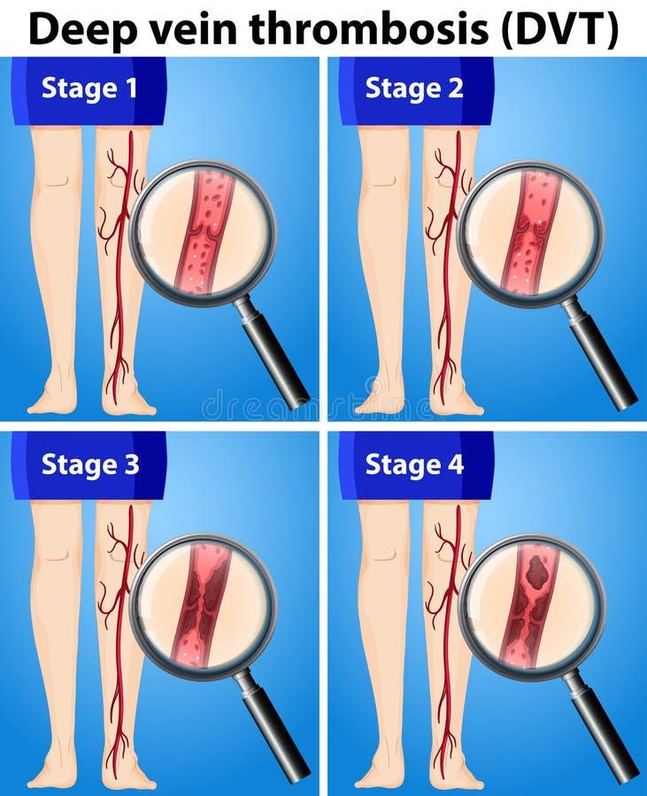 Four Stages of Deep Vein Thrombosis. Illustration stock illustration