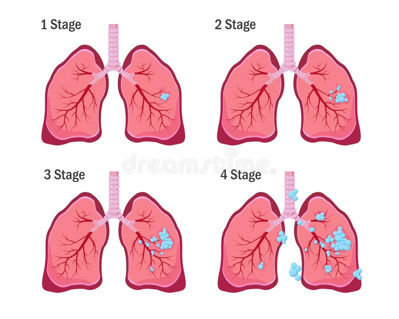 Four stages of lung cancer disease. Lung cancer concept. Four stages of lung cancer disease. Vector illustration on white background stock illustration