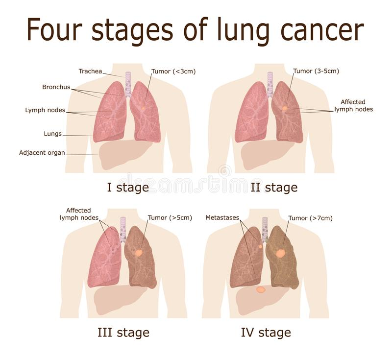 Four stages of lung cancer vector illustration