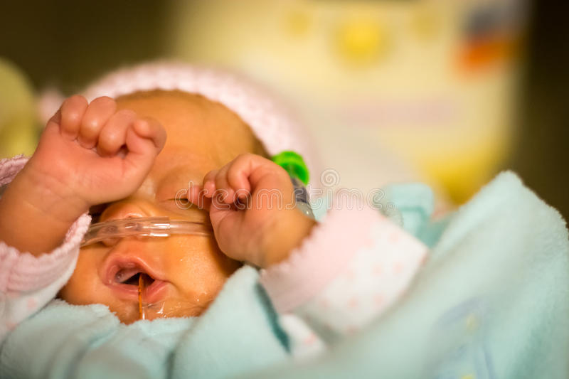 Frühchenbaby, das ihre Augen im nicu reibt lizenzfreie stockfotografie