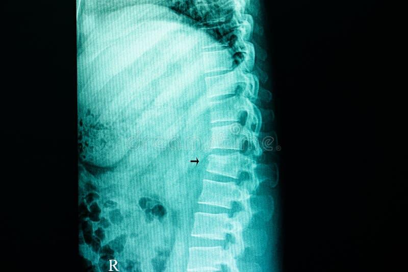 fractura de compresión de la espina dorsal lumbar imagen de archivo libre de regalías