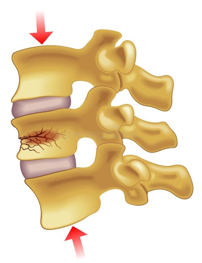 Fractura de compresión vertebral ilustración del vector