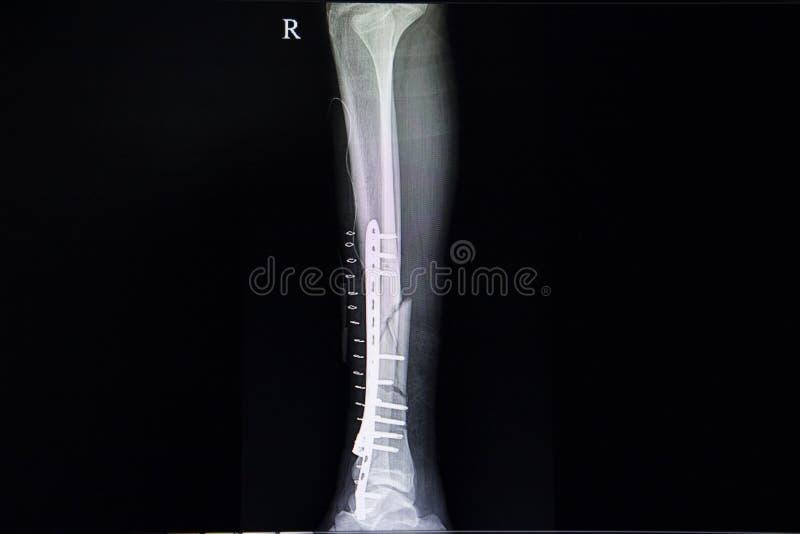 fractura de la pierna imagenes de archivo