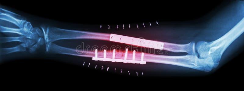 Fracture ambo el hueso del antebrazo (cubital y el radio) Fue actuado y fijo interno por la placa y el tornillo imagenes de archivo