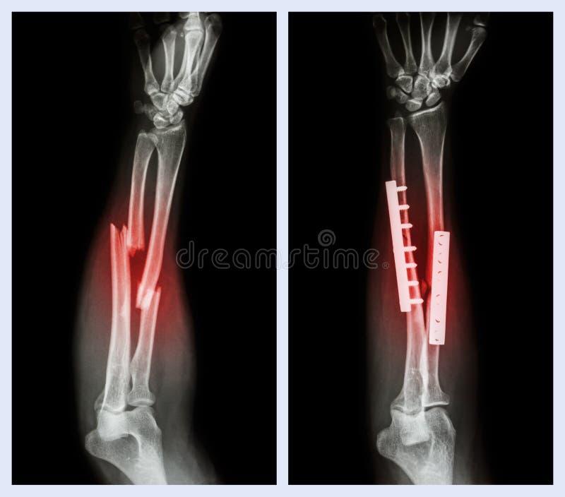 Fracture ambo el hueso del antebrazo Fue actuado y fijo interno con la placa y el tornillo fotos de archivo