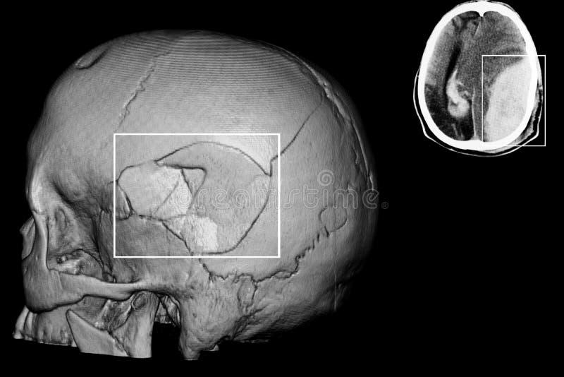 Fracture de Sull reconstruction de CT-balayage, anatomie image libre de droits