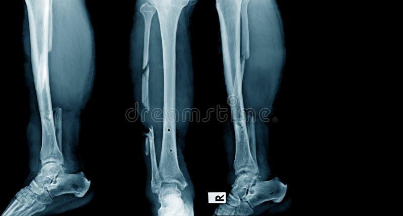 Fracture de tibia images stock