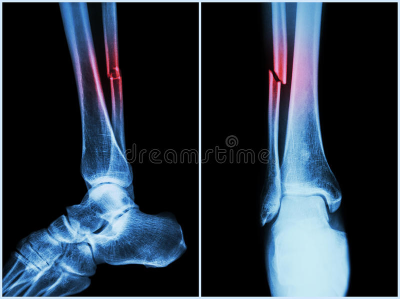 Fracture shaft of fibula bone ( leg bone ) . X-ray of leg ( 2 position : side and front view ) stock images