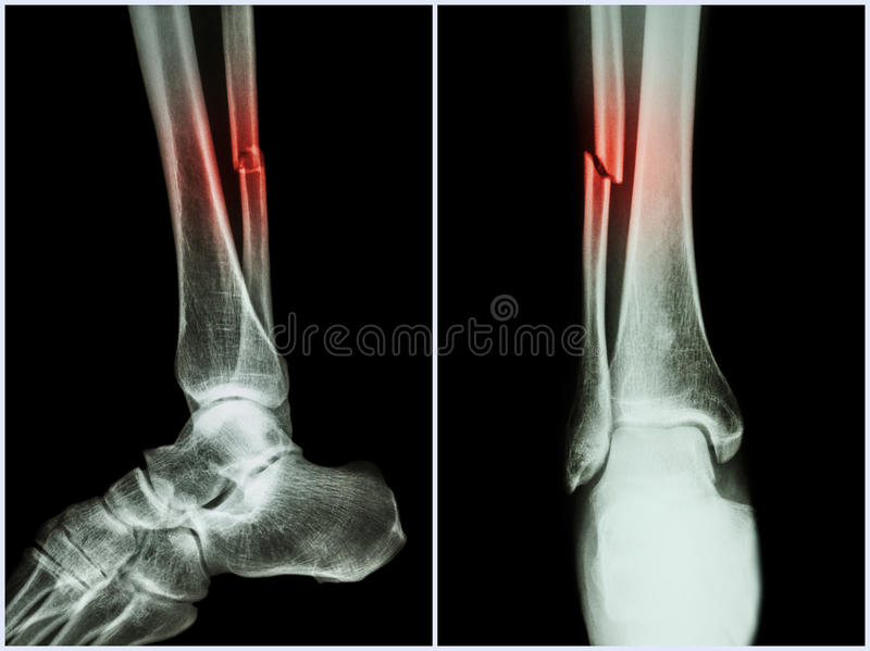 Fracture shaft of fibula bone ( leg bone ) . X-ray of leg ( 2 position : side and front view ) royalty free stock images