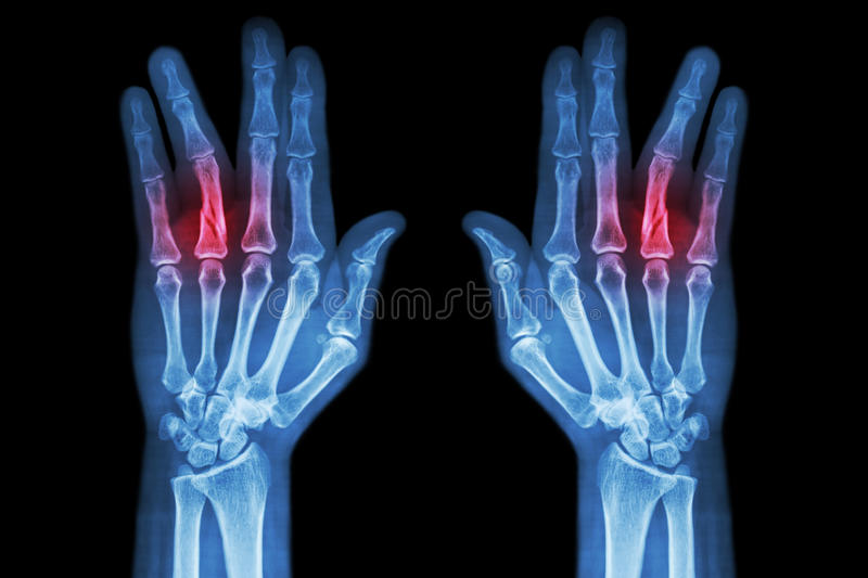 Fracture shaft of proximal phalange of ring finger ( film x-ray both hand AP ) royalty free stock photos