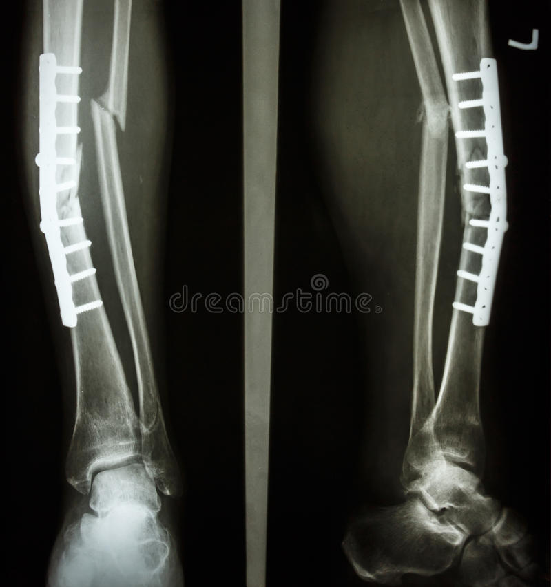 Fracture Shaft Of Tibia And Fibula Stock Image - Image ...