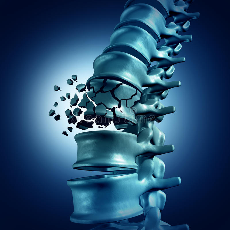 Fracture spinale illustration stock
