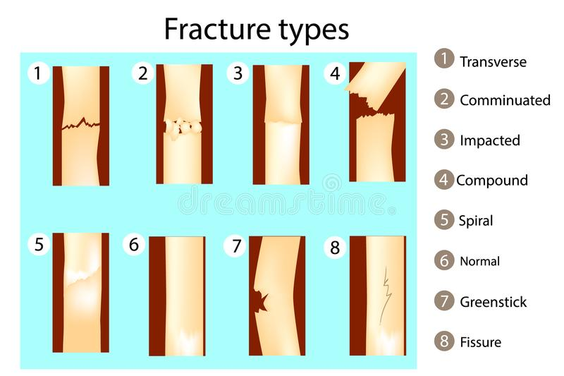 Fracture types of bones. stock illustration