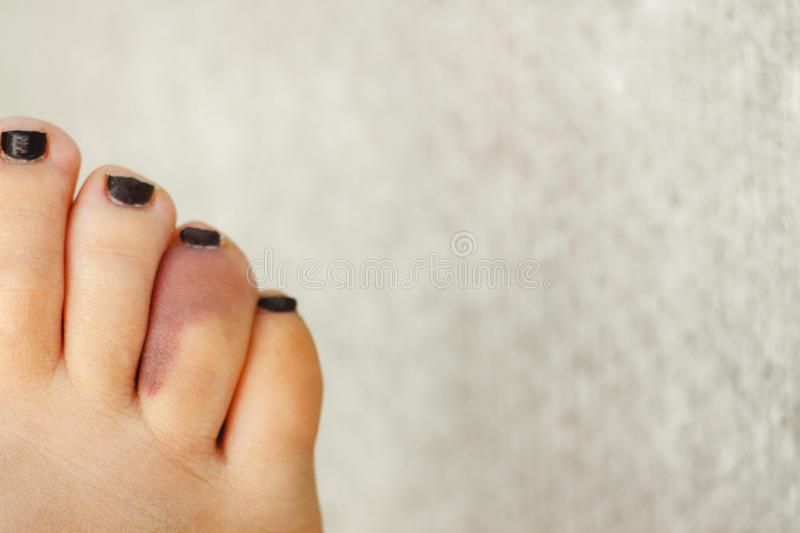 Fractured bruise of the fourth finger on the female foot. Lifestyle. Copy space.  royalty free stock images