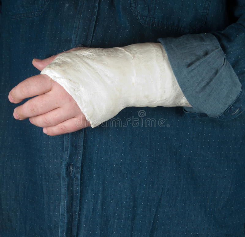 Fractured hand in a gypsum plaster. Close up shot royalty free stock photo