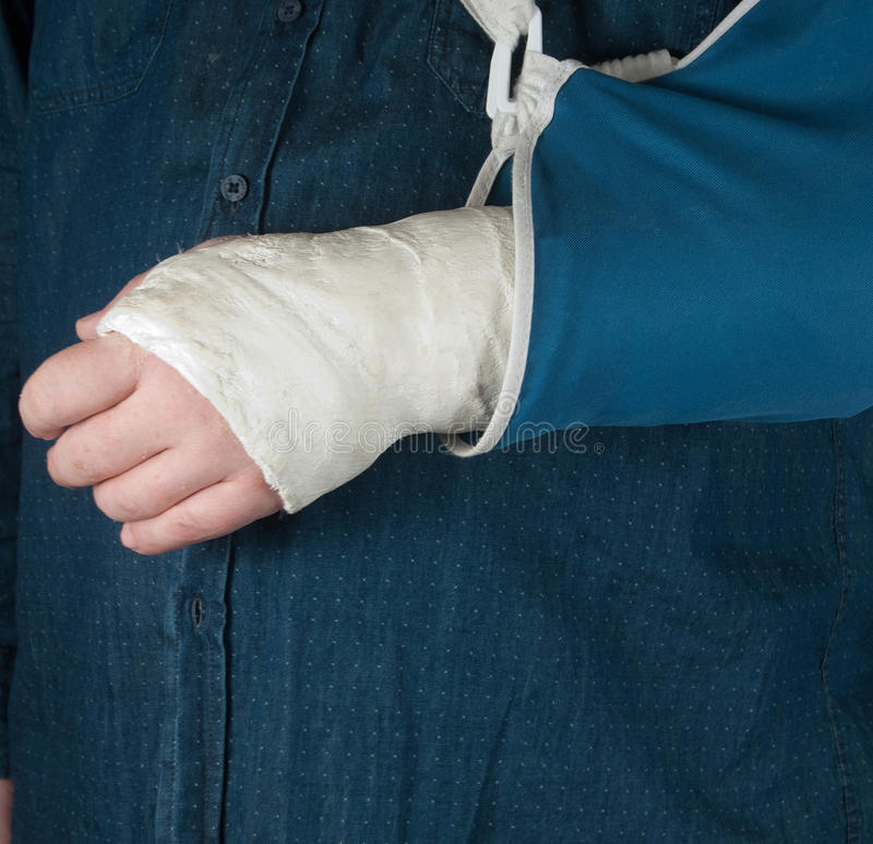 Fractured hand in a gypsum plaster. Close up shot stock image