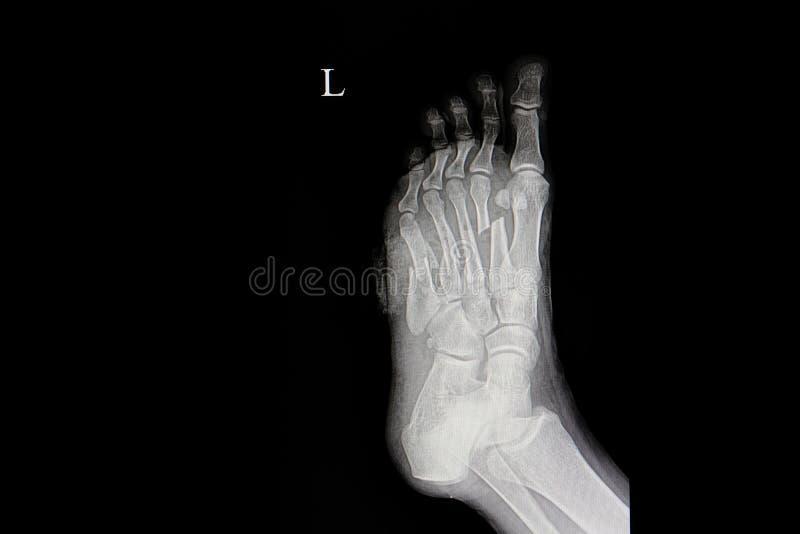 Fractured metatarsal bones. Xray film of a patient with fractured metatarsal bones of left foot stock image