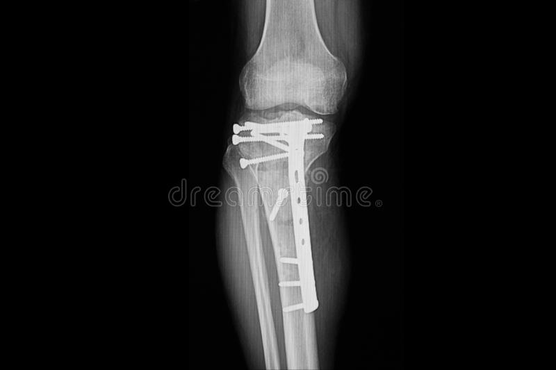 Fractured proximal tibia with plate and nails fixation. Xray film of a patient leg showing repaired fractured proximal tibia. The orthopedic plate and nails stock photo