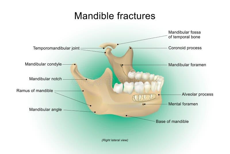 Fractures de mâchoire inférieure illustration libre de droits
