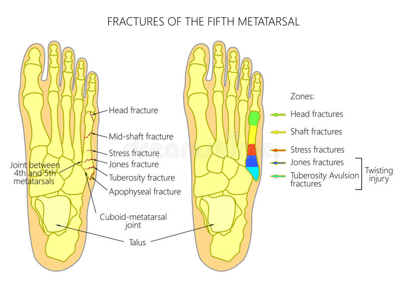 Fractures du 5ème métatarsien illustration de vecteur